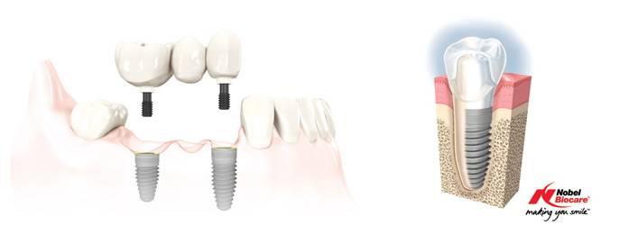 Implantáció (fogbeültetés)